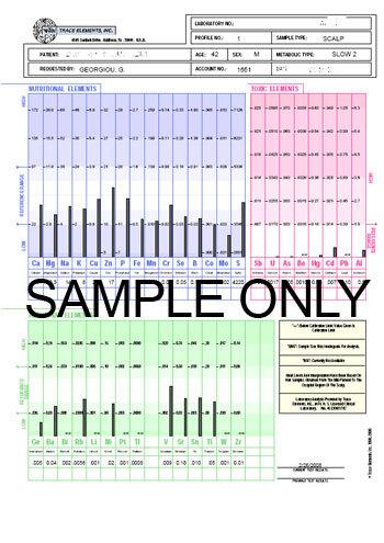 hmd-hair test sample
