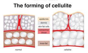 cellulite3
